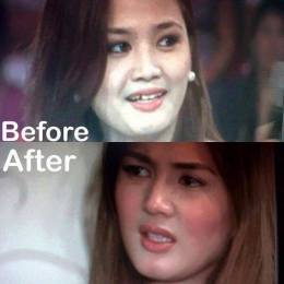 Before and After Comparative Photo of Deniece Cornejo Goes Viral