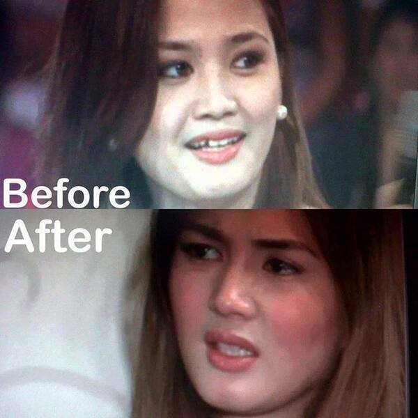 deniece cornejo before and after photo surgery enhancement