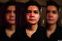 Vhong Navarro Assaulted by Group of Men Due to Rape Allegation!?