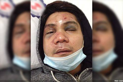 vhong navarro photo after beaten up