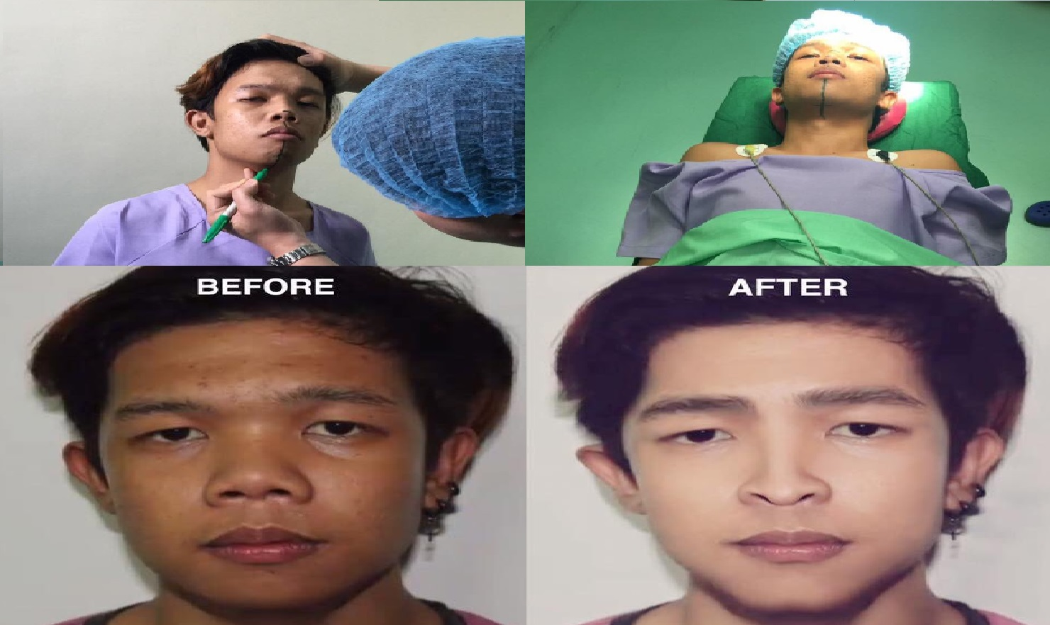 Marlou Arizala Undergoes Plastic Surgery; Change Name to Xander Ford
